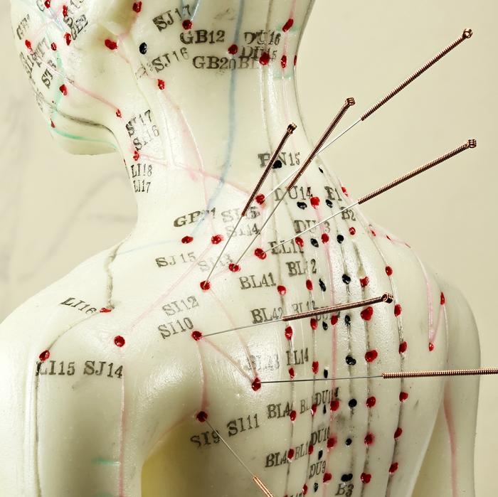 Acupuncture Singapore
